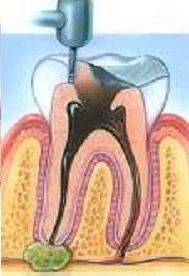 how to keep a root canal clean