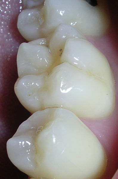 dental fissures and pits caries