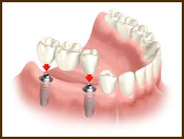 fixed dental bridge