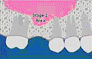 Dental Bone Graft Sinus Lift
